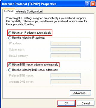 obtain an IP address automatically in Windows XP